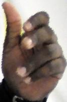 Peter Worrell's hand